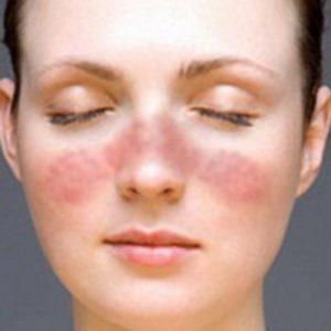 Sistemski eritemski lupus