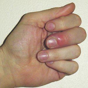 Paronihija-crvenilo oko nokta