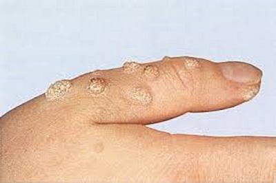 Verrucae-virusne bradavice